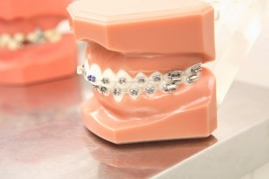 orthodontic_img001